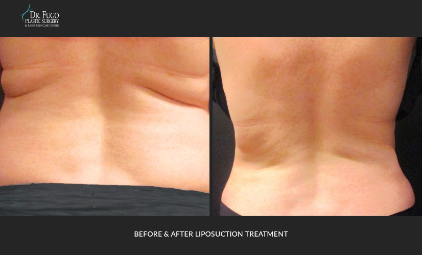 Liposuction Before & After Photos - Dr Fugo in New Windsor NY